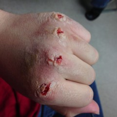 Fight club busted knuckles